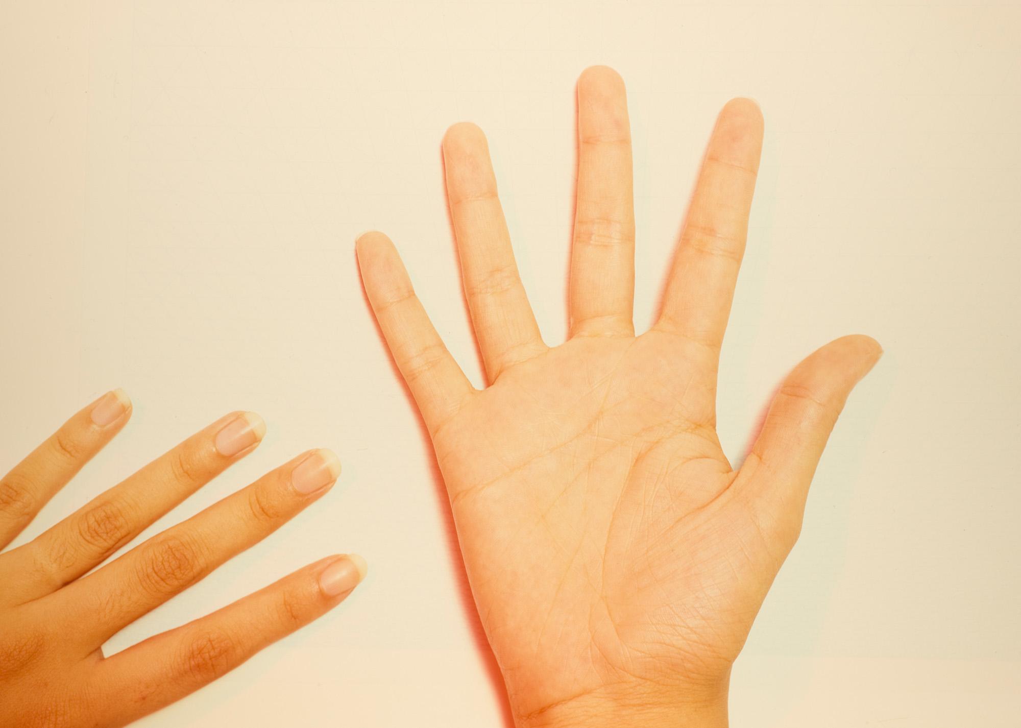 Hands, 1984